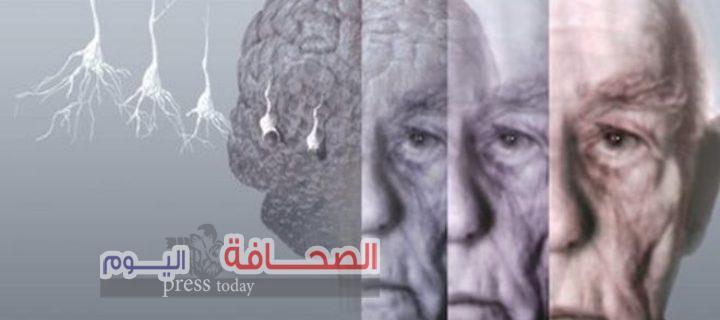 إكتشاف علاج جديد يقضى على مرض الزهايمر